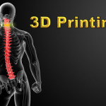 Chinese Boy Gets 3D Printed Backbone