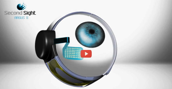 Argus2 retina implant