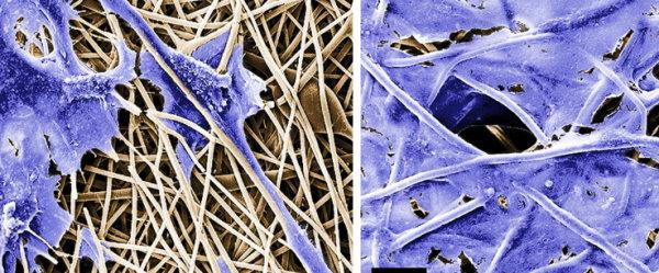 Spun fibers for implants