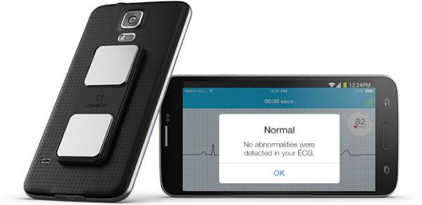 AliveCor ECG smartphone