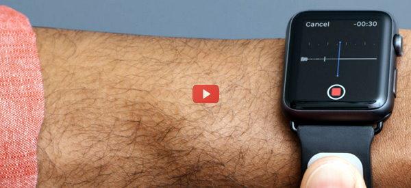 AliveCor ECG watchband