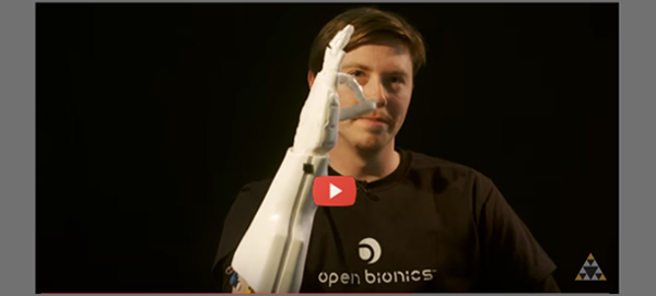 Open Bionics Arm with video 600x271