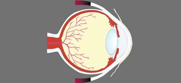 Retina 600x274