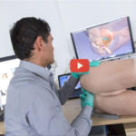 Robotic Prostate Exams [video]
