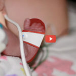 Tiny Sandal Saves Infant Lives [video]