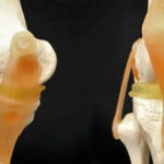 3D Printing Yields Cartilage Implants