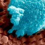 Nanowires to Help Patients See Again