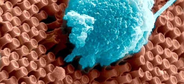 nanowire retina implant