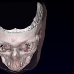 Implanted Magnets Treat Eyesight Disorder