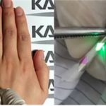 New Approach to OLED Displays in Textiles