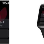 Cedars-Sinai Offers Patients App on Apple Watch