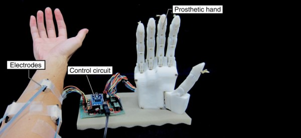 Smart Prosthetic Uses AI to Learn Faster