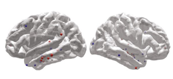Brain Stimulation Shows Promise in Improving Memory