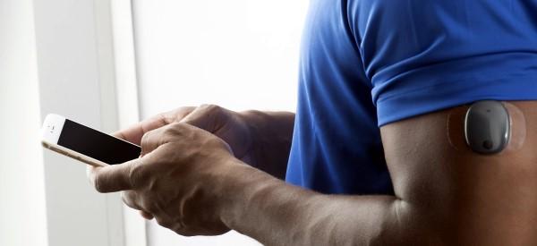 Glucose Sensor Implant Lasts 6 Months Health Tech Insider