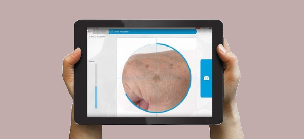 Dedicated iPad Uses AI to Screen for Skin Cancer