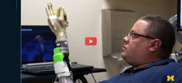 Machine Learning Breakthrough in Mind-Controlled Prosthetics [video]