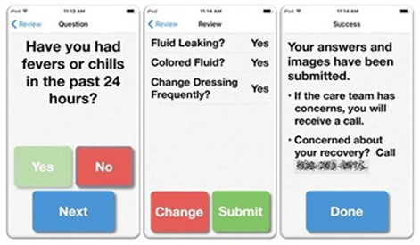 Smartphone App Aids Post-Surgical Wound Care