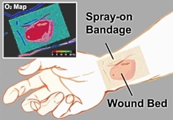 Smart Bandage Aids Wound Healing