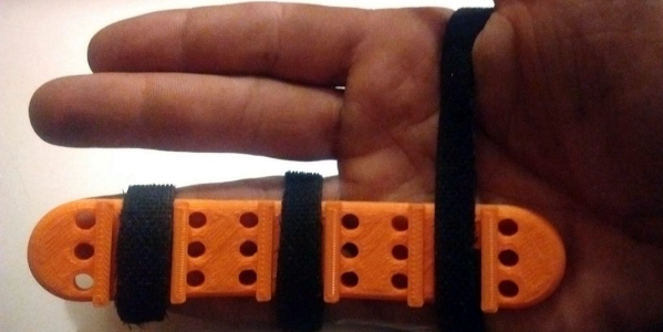 Roll-Your-Own Finger Splint with 3D Printing