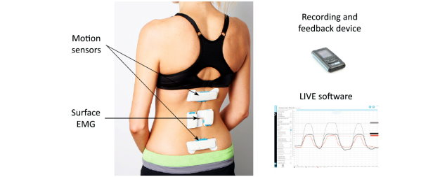 Wearable Monitors Helps Lower Back Pain Treatment