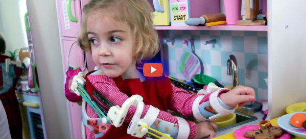 Magic 3D Printed Exoskeleton for Kids [video]