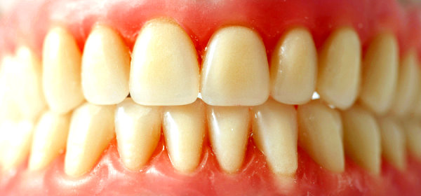 3D Printed Teeth Fight Tooth Decay