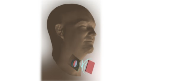 Implants Powered by Sound