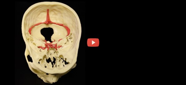 Doctors Get In-House 3D Print Services [video]