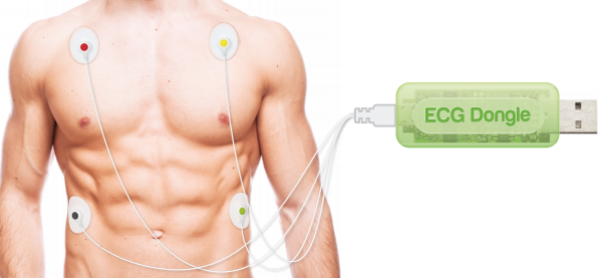 USB Smartphone Dongle Records 4-Electrode ECG