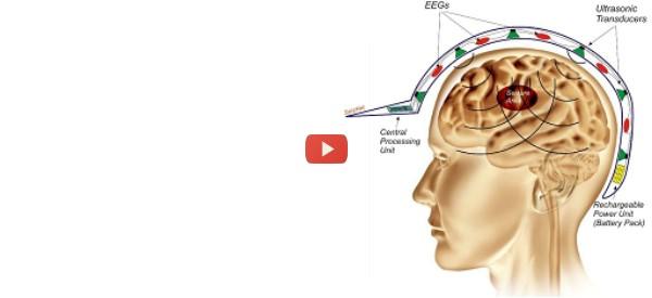 Non-Invasive Suppression of Seizures [video]