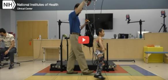 Exoskeleton Treats Pediatric Cerebral Palsy Crouch Gait [video]