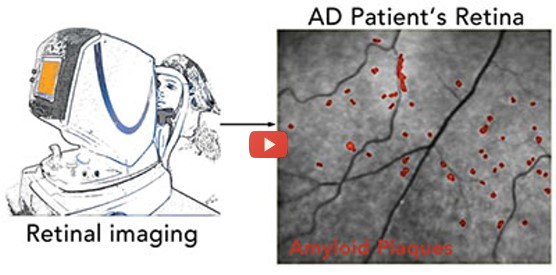 Eye Scan Detects Early Signs of Alzheimer's [video]