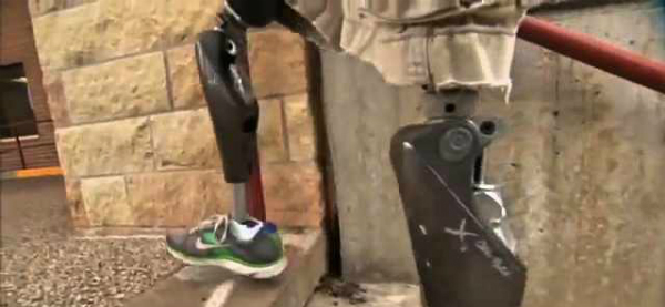 High-Tech Prosthetic Knees Reduce Long-term Care Costs